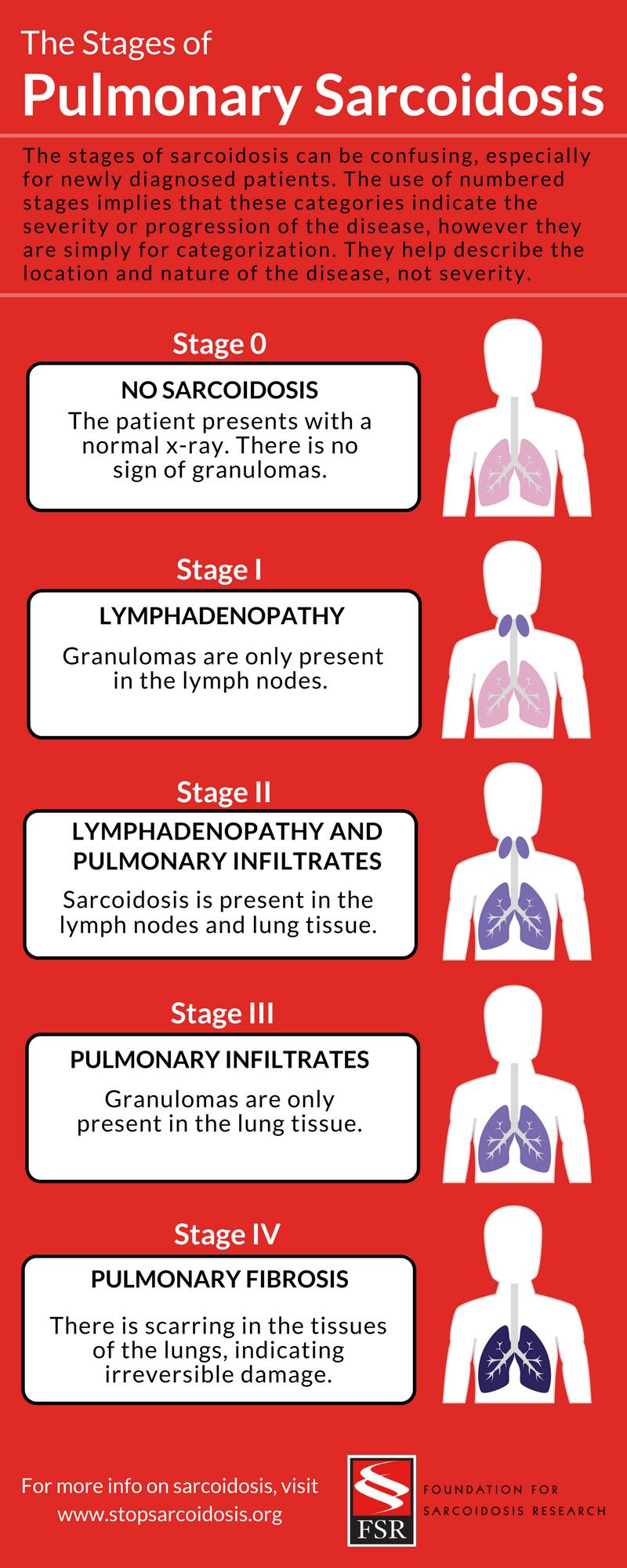 The Stages of Pulmonary Sarcoidosis- What Do They Really Mean