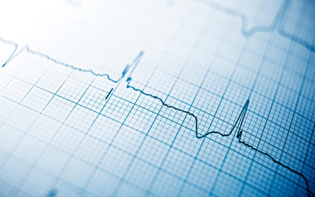Understanding Cardiac Sarcoidosis