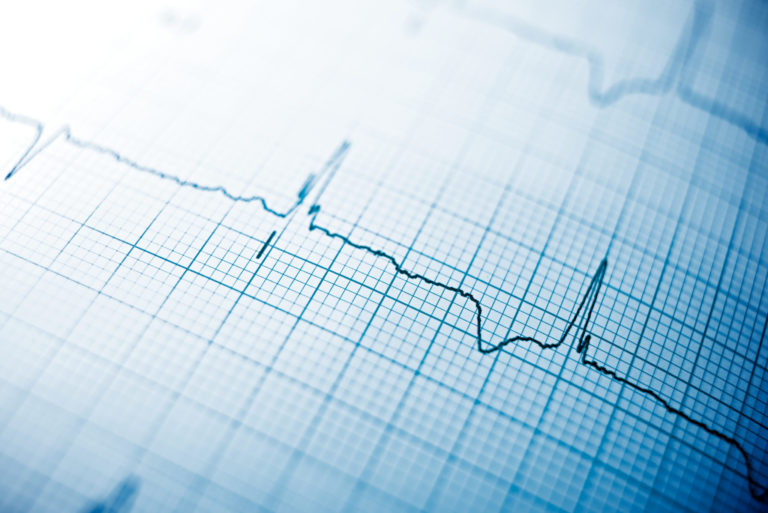 Understanding Cardiac Sarcoidosis — Foundation for Sarcoidosis Research